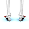 Phalanges of the foot03a posterior view.png