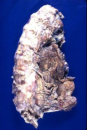 Pleural fibrosis (4867144568).jpg