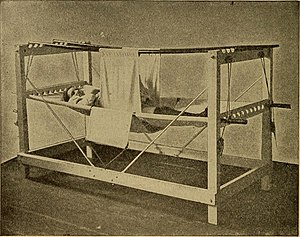 Symphysiotomy - Patient in a symphysiotomy hammock after surgery, 1907