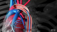 File:Stenting of Coarctation of the Aorta using a NuMed CP Stent - BVM Medical.webm