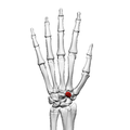 Trapezoid bone (left hand) 02 dorsal view.png