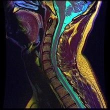 Cervical disc herniation[edit]