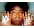 Acrofacial Vitiligo.png