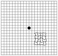 Amsler Grid (Metamorphopsia).jpg