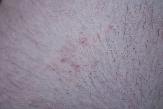 Bed Bug Bites Related To Their Size