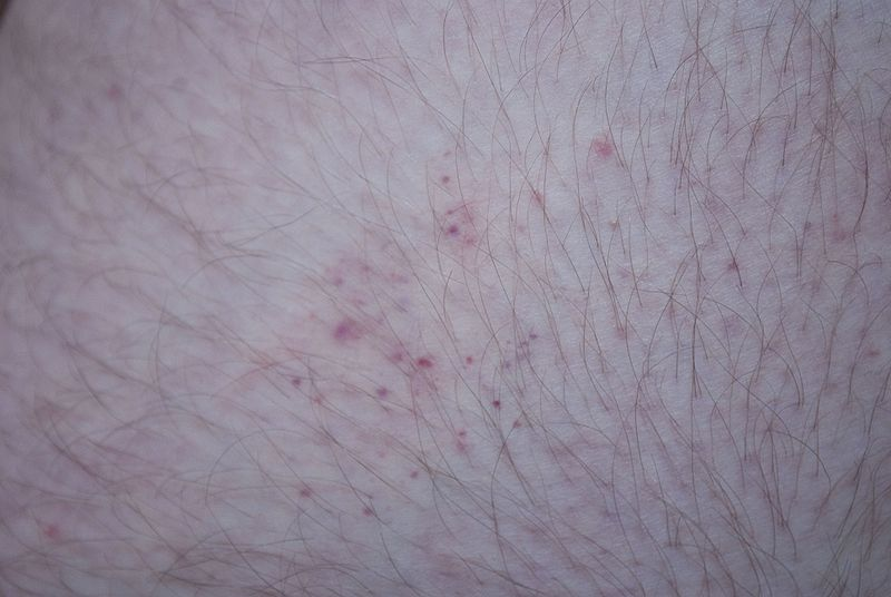 file bedbug bites on human thigh wikimedia commons. Black Bedroom Furniture Sets. Home Design Ideas