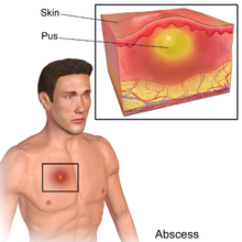 Abscess: Causes, Symptoms, Tests, and Treatment