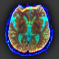 Brain MRI 103337 rgbca.png