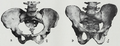 Braus 1921 238.png