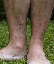 Cercarial dermatitis lower legs.jpg