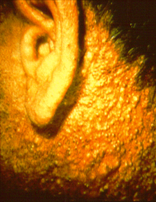 Chloracne on the ear and neck of a herbicide production worker Chloracne-in-herbicide-worker.png