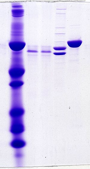 Gel electrophoresis of proteins -  Proteins separated by SDS-PAGE, Coomassie Brilliant Blue staining