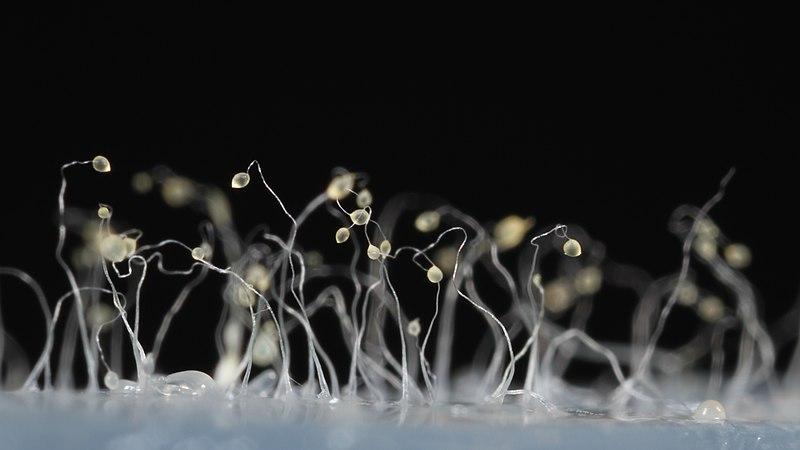 Dictyostelium discoideum.