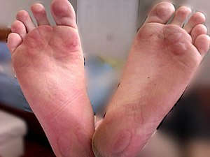 English: Friction Blisters on Human foot due t...