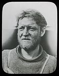 Madigan's frostbitten face, Adelie Land (Australasian Antarctic Expedition, 1911-1914) (6173427699).jpg