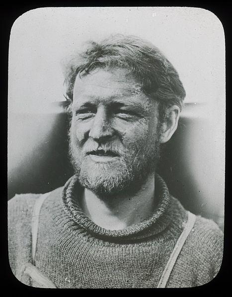 File:Madigan's frostbitten face, Adelie Land (Australasian Antarctic Expedition, 1911-1914) (6173427699).jpg