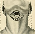 Operative surgery (1899) (14776879231).jpg