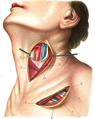 Superior thyroid artery - Superficial dissection of the left side of the neck, showing the carotid and subclavian arteries.