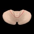 Primary fissure of cerebellum --- 05.png