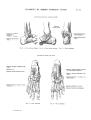 Richer - Anatomie artistique, 2 p. 38.png