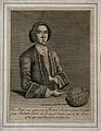 Robert Short, who had a bladder-stone removed which was eigh Wellcome V0007229EL.jpg