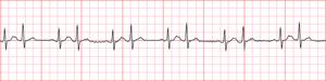 Bigeminy - simple ECG of a Supraventricular Bigeminy