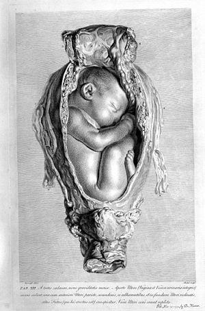 The anatomy of the human gravid uterus; foetus in utero. Wellcome M0014673.jpg