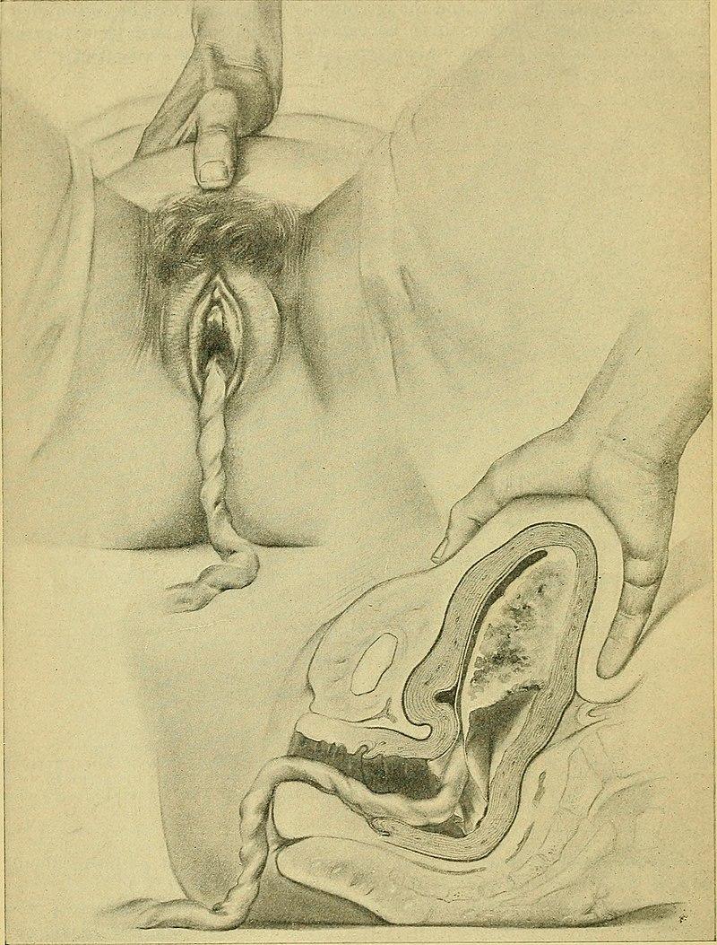 Rękoczyn Credego