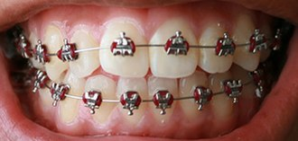 Orthodontic archwires - Demonstration of an archwire