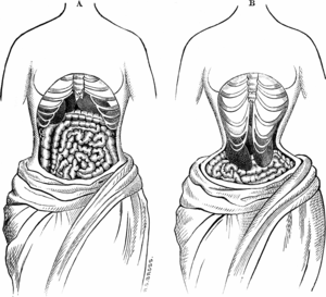Tightlacing - Two sketches from 1884 depicting what, at the time, was believed the way the inside of the body looked when wearing a corset.