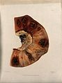 A section of diseased intestine. Coloured mezzotint by W. Sa Wellcome V0009761ER.jpg