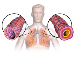 Asthma(lungs)