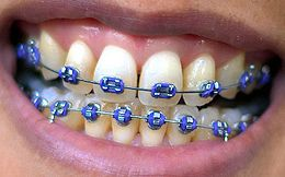 how to tell if you need braces