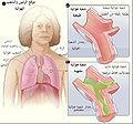Bronchitis-ar.jpg