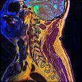 Cervical spine MRI T1FSE T2frFSE STIR 12.jpg