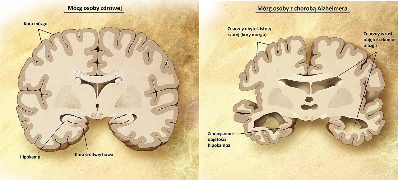 Porównanie budowy mózgu osoby zdrowej (po lewej) i osoby z chorobą Alzheimera (po prawej)