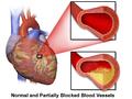 Coronary Artery Disease.png