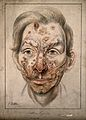 Head of a man with a syphilitic lesions affecting his face. Wellcome V0009903.jpg