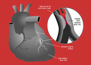 גיאגרמת התקף לב בעברית (Heart attack diagram)