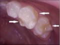 Hipomineralización en Molar.png