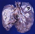 Hodgkin disease (4420754645).jpg