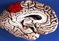 Human brain inferior-medial view with marked Precuneus.JPG