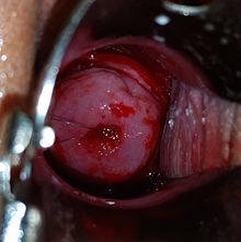 Intrauterine device wikipedia removal strings of an intrauterine device exiting the cervical os of a nulliparous woman image was taken immediately after insertion and injection of ccuart Choice Image