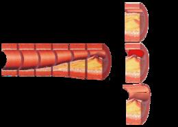 atherosclerosis - wikipedia, Cephalic Vein
