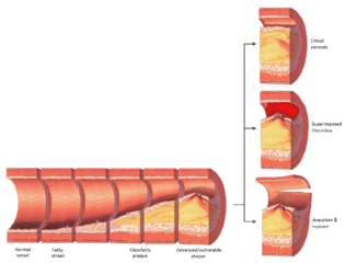 Atherosclerosis stages