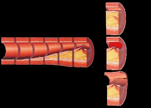 Fortschreitende Arteriosklerose und die möglichen Komplikationen