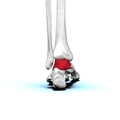 Left Talus bone 05 posterior view.png