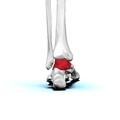 Left Talus bone 05 posterior view.png