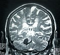 MRI Cerebellum Hemorrhage.jpg