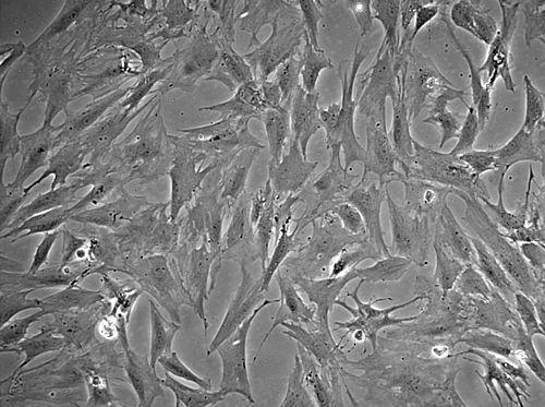 Miofibroblastos cardiacos.jpg